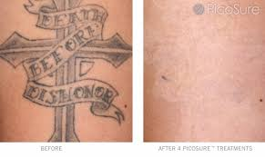 laser tattoo removal in victoria bc cosmedica