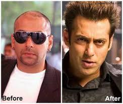 ranbir kapoor hair transplant omg these 5 bollywood actors have undergone cosmetic surgery
