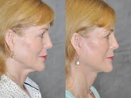 hairstyles that cover face lift scars auralyft mini facelift mini lift wide awake face neck
