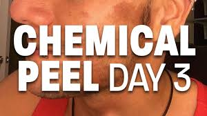 chemical tan chemical peel day 3 25 tca peel youtube