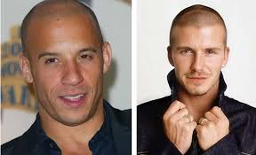 what hairstyles can be done with a bald spot in the top of head bald hairstyles 2012 blondelacquer