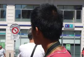 asian pubic hair asian hair loss body hair loss hairlosstalk forums