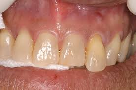 vire teeth save the tooth or place an implant the changing treatment