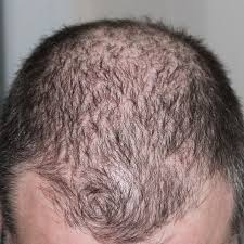 low level light therapy hair 106 best procedures at sadick dermatology images on pinterest acne