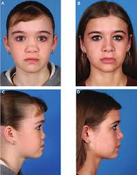 classification and treatment of the saddle nose deformity diana c ponsky hospitals ohio uhhospitals