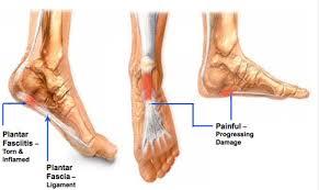 Planters Fasciitis Surgery by Heel Pain Charleston Sc Podiatrist Carolina Foot Specialist