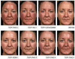 blue light for acne side effects marvelous blue light treatment side effects 4 blue light acne
