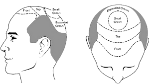 hair transplant calculator cost of hair transplant top hair transplant center delhi jaipur