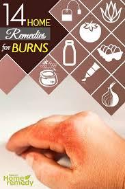 Home Remedies For Small Burns - 17 parasta ideaa pinterestissä remedies for burns