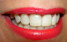 Teeth Whitening With Hydrogen Peroxide Get Rid Of Yellow Stains On Teeth Naturally