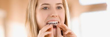 tooth whitening at home consumer reports