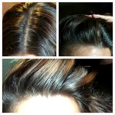 new hair growth discoveries just natural grow new hair treatment review thin hair and natural