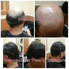 hair weaves for balding men another male hair replacement unit man weave hairstyles