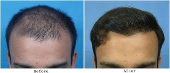 hair transplant month by month pictures amity ht in stages 2000 fuht 9 month update hair transplant
