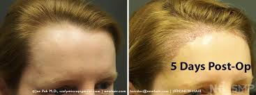 hair style wo comen receding female hairline lowering and rounding surgery balding blog