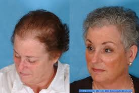 hair cuts for balding crown problem discover the best haircuts for women with thinning hair