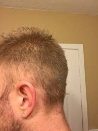womans hair thinning on sides losing hair on sides of head as well hairlosstalk forums
