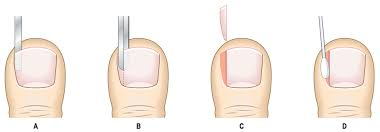 ingrown toenails and nail surgery fitzroy foot and ankle clinic