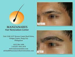 hair transplant costs in the philippines eyebrow transplant and restoration hair transplant manila