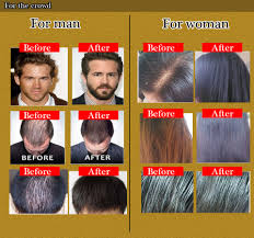 best chinese medicine hair regrowth serum yuda pilatory stop hair