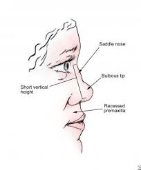 classification and treatment of the saddle nose deformity saddle nose rhinoplasty history of the procedure problem