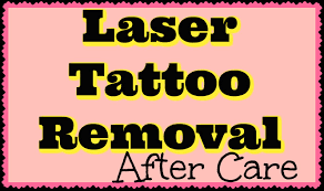 laser tattoo removal aftercare what to do what u0027s normal youtube