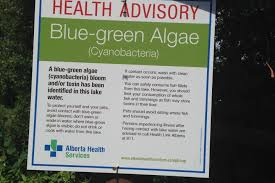 toxic amounts of blue green algae in buffalo pound lake could be