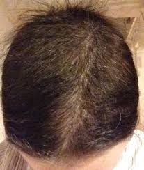 growing back afro american hair after chemo fights like a girl everything i ve learned about chemo and