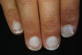 slideshow what your fingernails say about your health