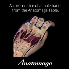 Anatomage Table A Coronal Slice Of A Male Hand From The Anatomage Table From The