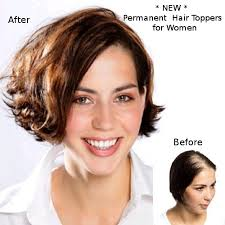 hair toppers for thinning hair women permanent extensions diva hair