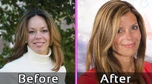 amy yancey before plastic surgery flipping vegas photos