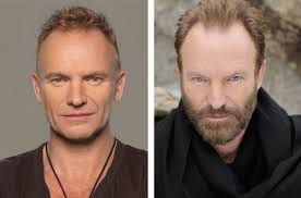 how has sting been a nw3a for 20 years hairlosstalk forums