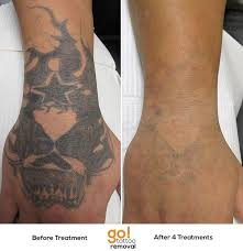 25 beautiful tattoo removal scars ideas on pinterest tattoo