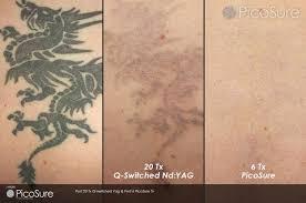 laser tattoo removal photos pics winston salem nc picosure revlite