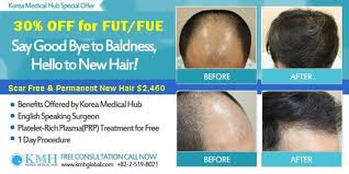 prescreened hair transplant physicians price off promotion fut fue hair transplant surgery in seoul