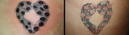 100 does laser tattoo removal leave a scar laser tattoo