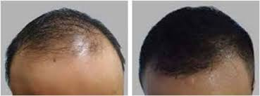 hair transplant costs in the philippines natural hair transplant hair restoration maxim hair restoration