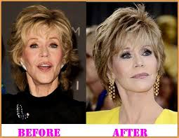hairstyles that cover face lift scars 32 best plastic surgery images on pinterest celebrities