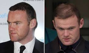 coronation street hair transplants wayne rooney needs a second hair transplant says expert who s