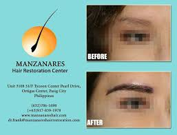 hair transplant in the philppines cost eyebrow transplant and restoration hair transplant manila