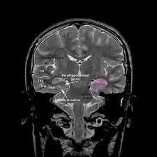 Radiology Anatomy Mri Brain Ambiens Cistern Anatomy Radiology Anatomy Images