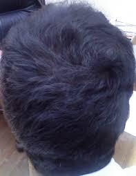 boys hair crown the hair centre male hair loss treated successfully on the crown