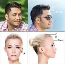 female receding receding hairline receding temples learn how and why