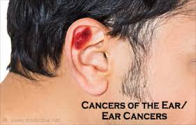 cancer of the ear cartilage cancers of the ear ear cancers causes symptoms diagnosis
