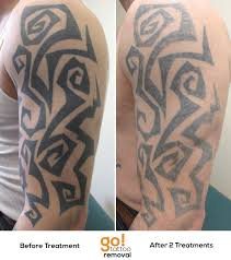 2 laser tattoo removal treatments down on this large tribal piece