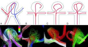 hemodynamic patterns of anterior communicating artery aneurysms a