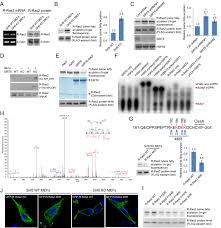 sirt6 regulates ras related protein r ras2 by lysine defatty