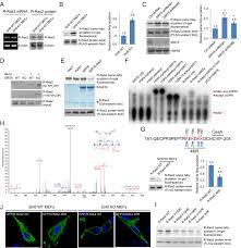 sirt6 regulates ras related protein r ras2 by lysine defatty