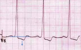 strain pattern ecg meaning left ventricular hypertrophy